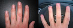 normal vs steves nails